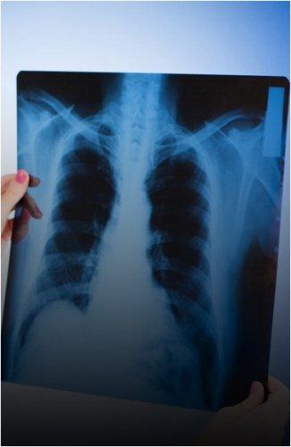 Снизился уровень заболевания туберкулезом