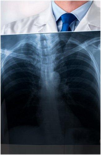 Главный врач Павлодарской области огласил данные смертности от пневмонии